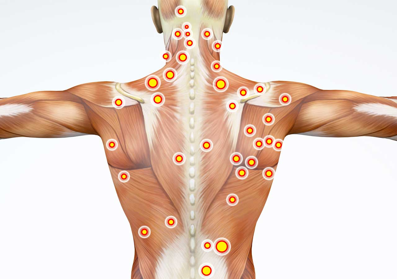 trigger-point-injections-cleveland-pain-management-clinic